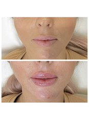 Russian Lip Fillers  - Equinox Beauty and cosmetic clinic