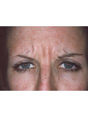 Treatment for Lines and Wrinkles - Dermedica Perth Medical Clinic