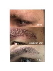 Eyebrow Transplant - Bellissimo Clinic