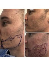 Facial Hair Transplant - Bellissimo Clinic