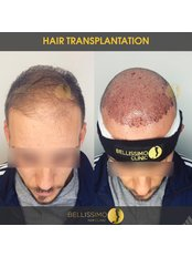 Robotic Hair Transplant - Bellissimo Clinic