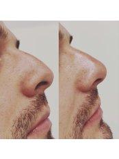 Non-Surgical Nose Job - Bellissimo Clinic
