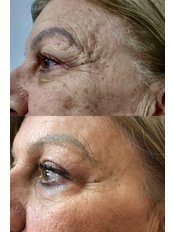 Treatment for Wrinkles - Bellissimo Clinic