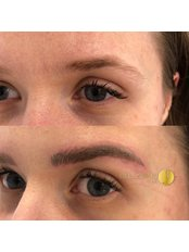Non-Surgical Eye Lift - Bellissimo Clinic