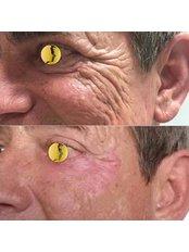 PlexR - Non invasive blepharoplasty - Bellissimo Clinic