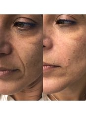 Nasolabial Folds Treatment - Bellissimo Clinic