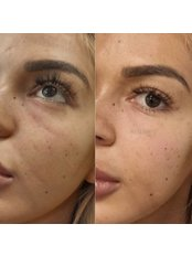 Dermal Fillers - Bellissimo Clinic