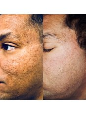 Scar Removal - Bellissimo Clinic