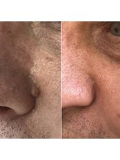 Mole Removal - Bellissimo Clinic