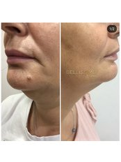 Fat Reduction Injections - Bellissimo Clinic
