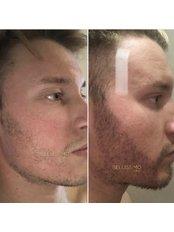 Beard Transplant - Bellissimo Clinic