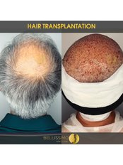 FUE - Follicular Unit Extraction - Bellissimo Clinic