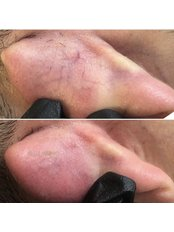 Spider Veins Treatment - Bellissimo Clinic