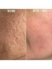 Acne Scars Treatment - Bellissimo Clinic