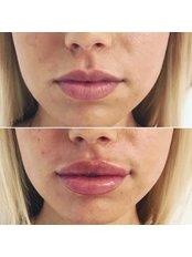 Lip Augmentation - Bellissimo Clinic
