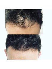 Scalp Micropigmentation - Bellissimo Clinic
