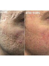 Pixel™ Laser Resurfacing - Bellissimo Clinic