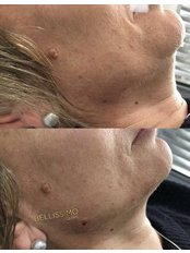Chin Augmentation - Bellissimo Clinic