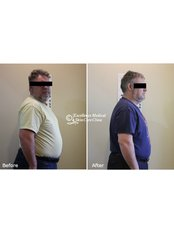 Weight loss program - Excellence Medical & Skincare Clinic, SherwoodPark