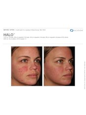 Halo Laser Treatment - Excellence Medical & Skincare Clinic, SherwoodPark