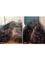 Hair Loss Treatment - Excellence Medical & Skincare Clinic, SherwoodPark