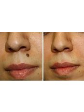 Mole Removal - Excellence Medical & Skincare Clinic, SherwoodPark