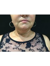 Submental Chin Fat Reduction - Skin Vitality Medical Clinic - Kitchener