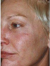 Fraxel™ - Skin Vitality Medical Clinic - Kitchener