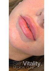 Lip Augmentation - Skin Vitality Medical Clinic - Kitchener