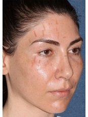 Laser Scar Removal - Skin Vitality Medical Clinic - Kitchener