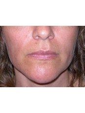 Masseter Reduction - Skin Vitality Medical Clinic - Kitchener