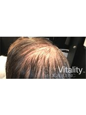 HRI - Hair Regrowth Injections - Skin Vitality Medical Clinic - Kitchener