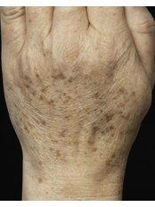 Hand Rejuvenation - Skin Vitality Medical Clinic - Kitchener