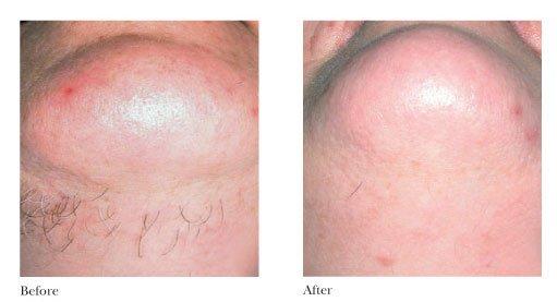 Skin Vitality Medical Clinic Kitchener In Kitchener