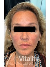 Dermal Fillers - Skin Vitality Medical Clinic - Kitchener