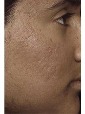 Acne Scars Treatment - Skin Vitality Medical Clinic - Kitchener