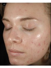 Acne Treatment - Skin Vitality Medical Clinic - Kitchener