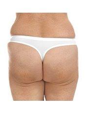 Nonsurgical Butt Lift - Skin Vitality Medical Clinic - Kitchener