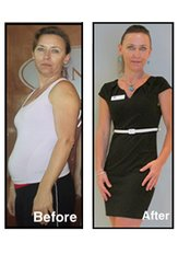 Weight Loss Before & After - Skin Vitality Medical Clinic - London