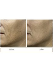 Fraxel Before & After - Skin Vitality Medical Clinic - London
