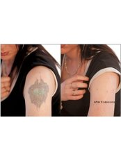 Tattoo Removal - Hometown Laser Clinic and Spa