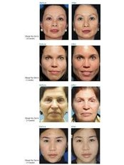 hyperpigmentation treatments - DermaCure Clinic