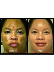 Before and after Obagi Blue Peel - DermaCure Clinic