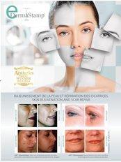 Dermaroller™ - DermaCure Clinic