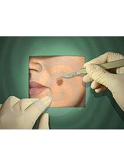 Wart Removal - Ola Beauty Clinic
