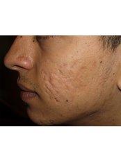 Acne Scars Treatment(chemical peel) - Ola Beauty Clinic
