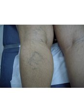 Laser  Vein Treatment - Ola Beauty Clinic