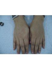 Fat Transfer - Ola Beauty Clinic