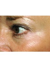 Treatment for Lines and Wrinkles - Ola Beauty Clinic