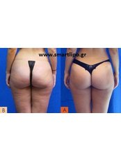 Radiofrequency Skin Tightening - Smart Lipo Clinic